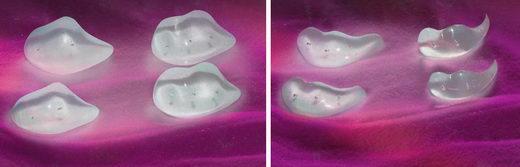 arcplasztika implantátum