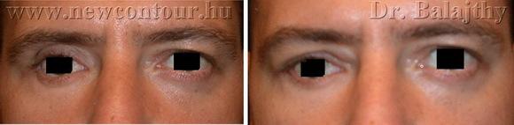 arcplasztika képek plasztikai sebész