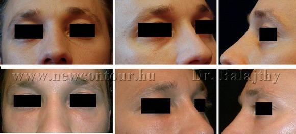arcplasztika képek plasztikai sebészet
