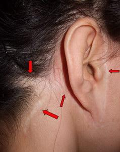 arcplasztika plasztikai sebész
