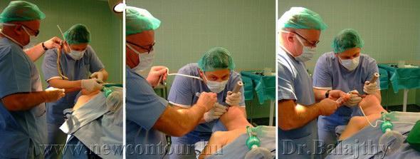 plasztikai sebészet érzéstelenítés műtét 1