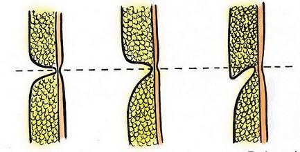 hasplasztika ábra
