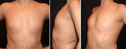 mellműtét mellkorrekció
