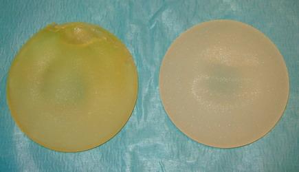 pip implantátum