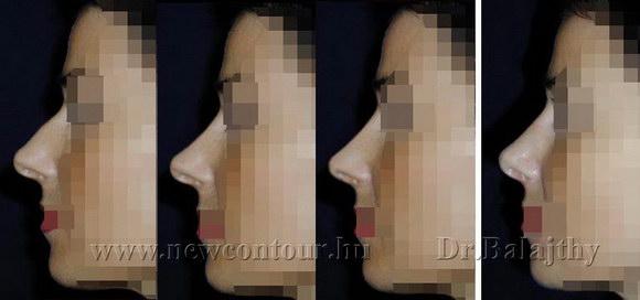 orrplasztika plasztikai sebész